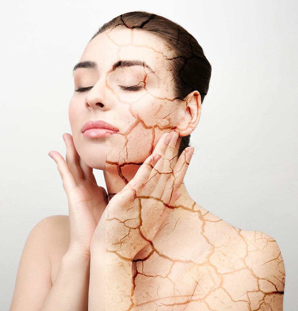 טיפול בעור יבש עם מוצרי אקנון, acnon, מבית GIGI