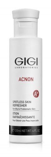 טיפול באקנה עם מוצרי אקנון, acnon מבית GIGI